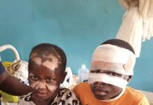 Skynewsafrica Son, daughter burnt by father for alleged witchcraft