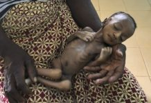 sky news africa Virus-linked hunger tied to 10,000 child deaths each month